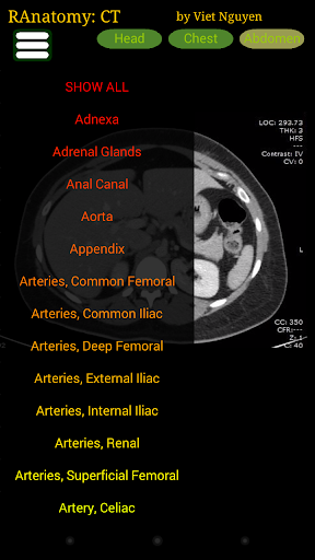 Radiology CT Anatomy  screenshots 3