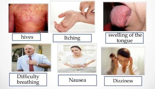 Một số triệu chứng của sốc phản vệ