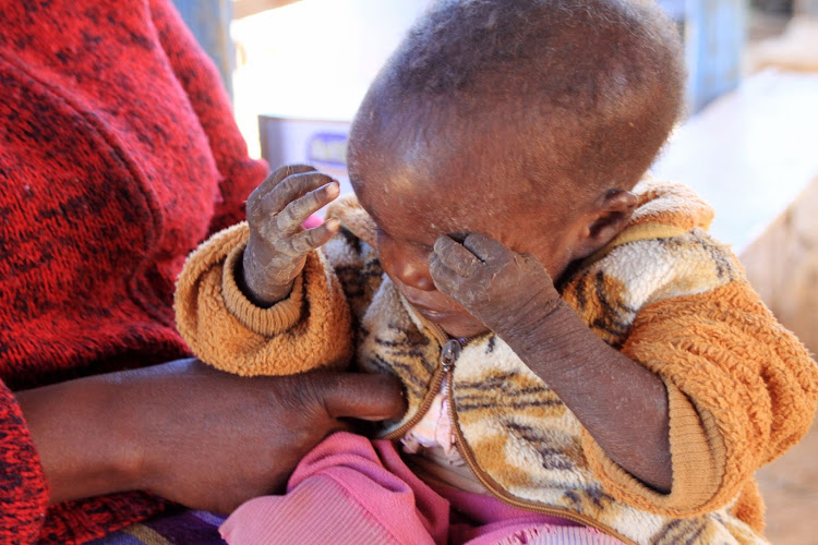 Eighteen-month-old baby Jeptoo Cherutich whose skin peeled off due to malnutrition at Sunrise Children's home in Kabarnet town on August 4, 2019.