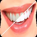 اسرع طرق تبييض الاسنان icon