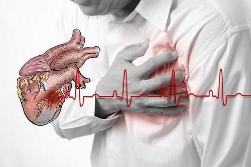 Một trong những biến chứng của huyết áp thấp là nhồi máu cơ tim