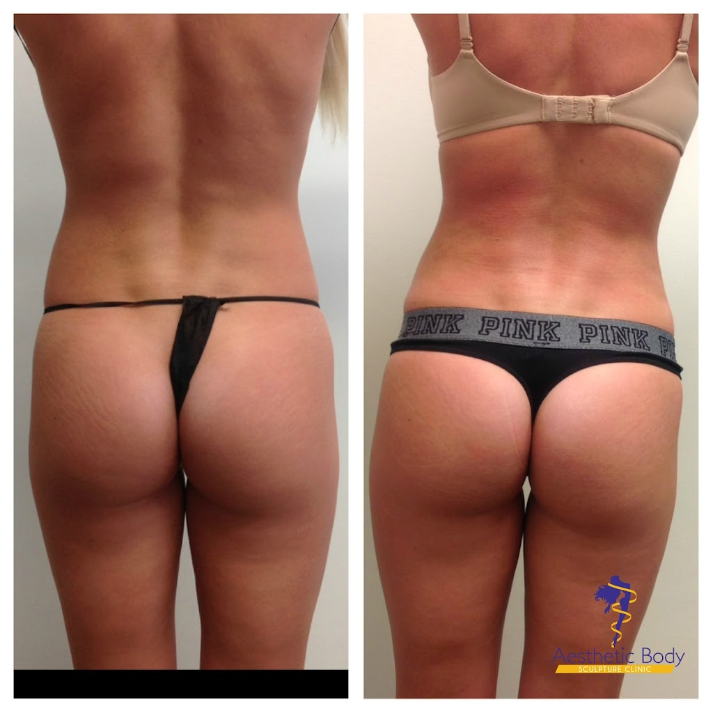 Liposuction and Sculptra butt lift