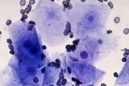 """Microfotografía de un frotis vaginal recogido durante el estro temprano, conteniendo un número incrementado de células epiteliales, que son células """"superficiales"""" con ningún núcleo, núcleos tenues, ó núcleos densos pero picnóticos y pequeños"""