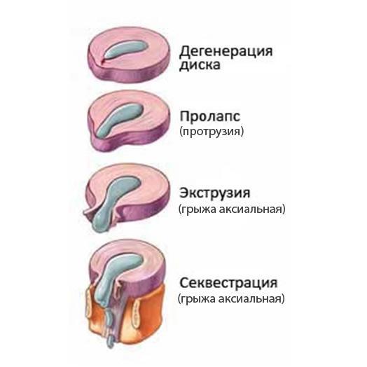 C:\Users\Виктория\Desktop\dorzalnaya-gryzha-diska2.jpg