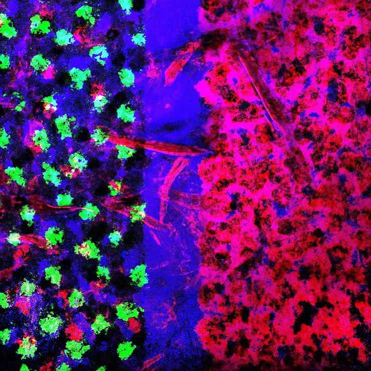 Autofluorescence Confocal optical slice