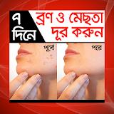 ৭ দিনে ব্রণ ও মেছতা দূর করুন - Bron mesta dur
