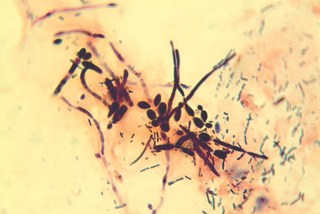 Candida albicans exhibiting mycelial growth in a fecal Gram's stain from a cockatiel