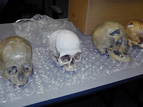 Photo: Osteology also addresses issues of  sex, age, injury/evidence of trauma, and population affiliation.
