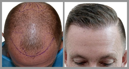 Results of a Hair Transplant Surgery