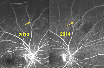 Photo: Fluorescein angiogram in 2013 shows no abnormal circulation. The FA for the 2014 visit indicates developing abnormal circulation.