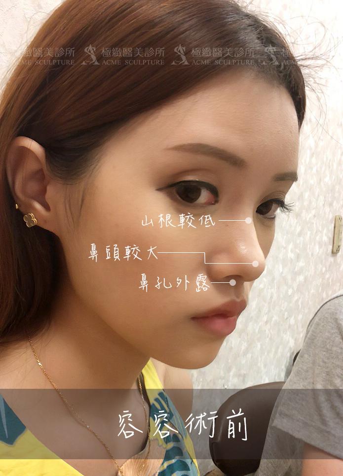 亞洲人常見的鼻型困擾