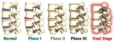 http://www.horst-chiropractic.com/wp-content/uploads/2012/12/spinal-degeneration.jpg