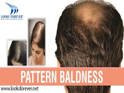 Hair Loss Treatment in Gorakhpur