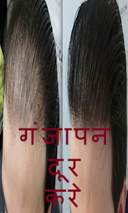 गंजापन दुर करे(Ganjapan) - náhled