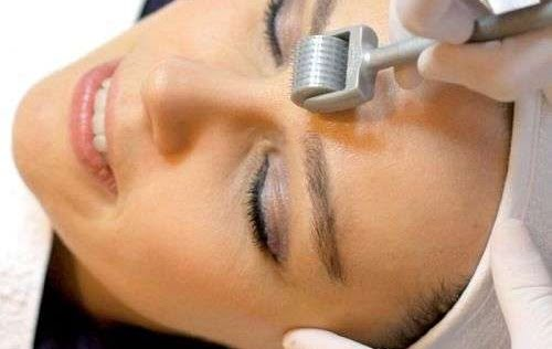 Dermaroller technology can help treat acne, scarring, stretch marks, anti-ageing and more