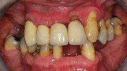 https://www.efp.org/fileadmin/_processed_/b/c/csm_stage-IV-periodotitis_785ab13ae0.jpg