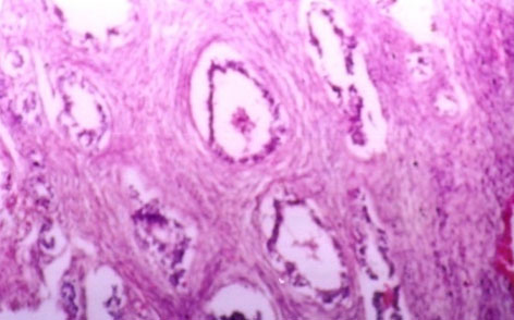 Microscopic picture showing periglandular fibrosis in a buffalo endometrium due to chronic endometritis (H&E stained at 100 X magnification).