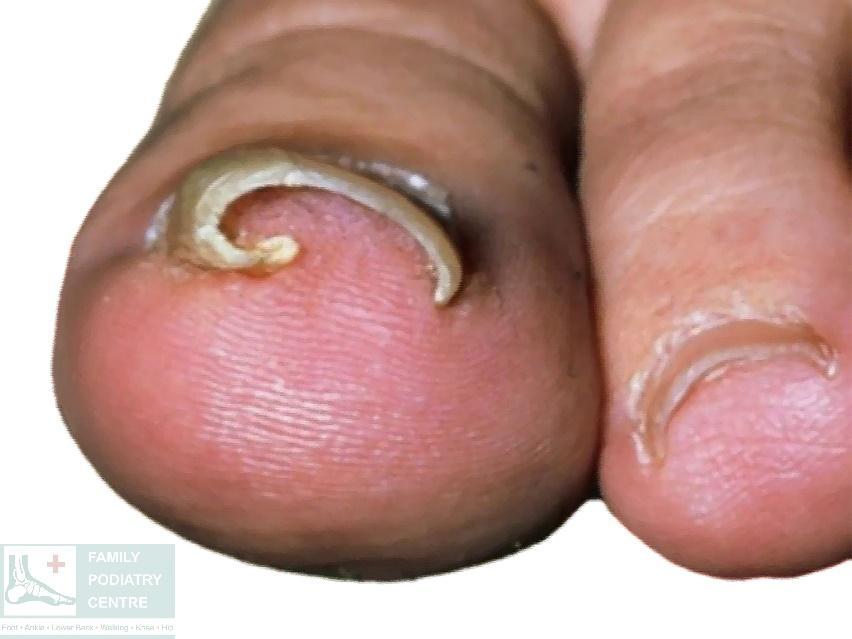 Involuted nail