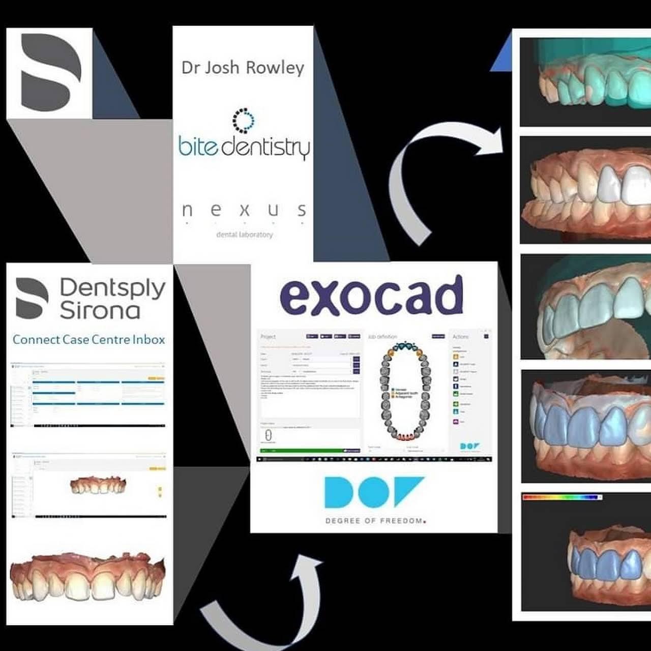 Nexus Dental Laboratory - Dental Laboratory