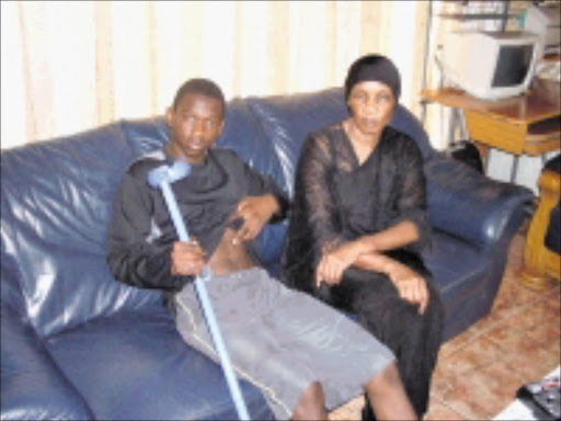 BRUISED: Tshepiso Mohlala and her mother Bonny claim that police inflicted pain on them. 31/01/09. Pic. Riot Hlatshwayo. © Sowetan.