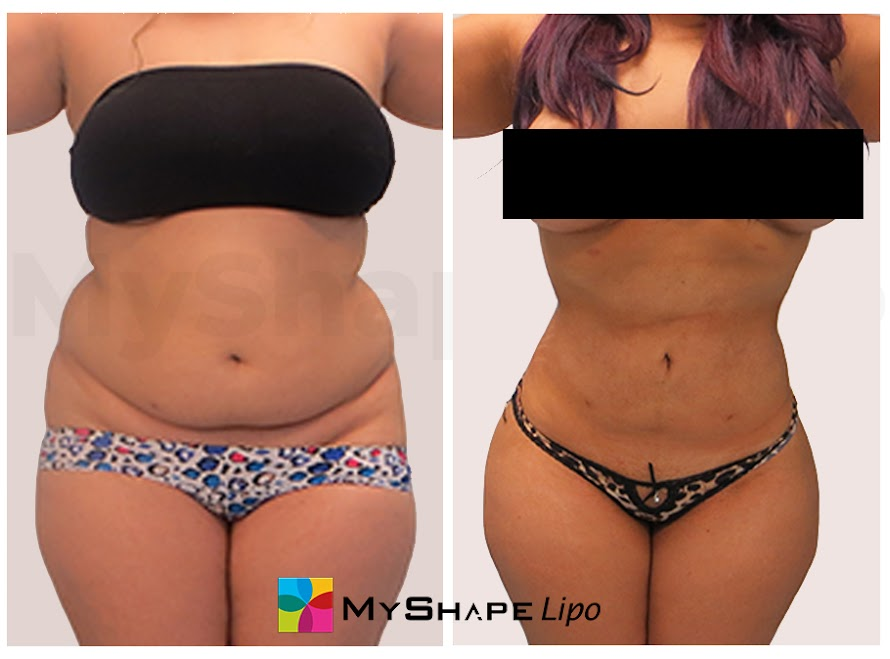 MyShape Lipo - Transform Me Now