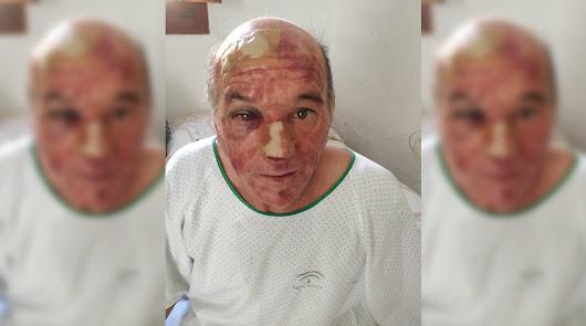 Maniatan, roban y dejan semiinconsciente a un hombre dentro de su casa en Vícar