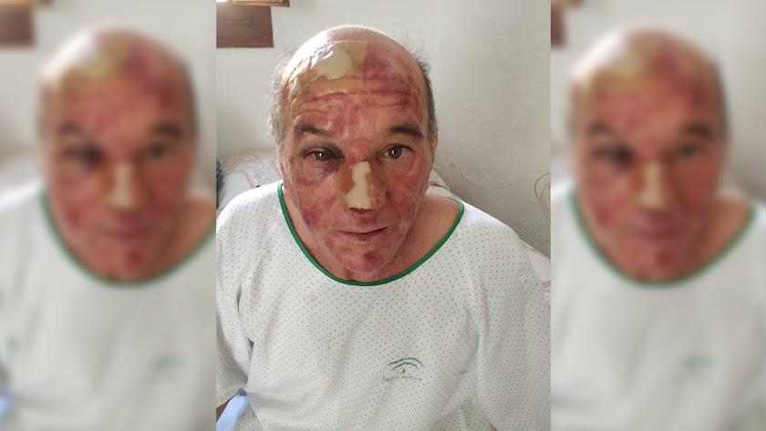 A. C. S., en el hospital de El Ejido, después de ser atendido tras el robo.