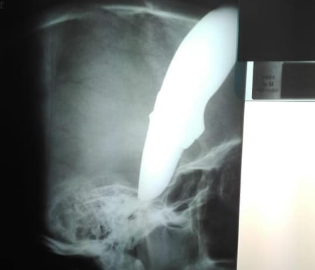 An X-ray shows how deeply the knife went into the cyclist's head when he was stabbed in the Strand, Western Cape.
