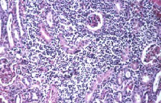 Nefritis intersticial aguda-subaguda; apariencia microscópica. Infección por L. canicola (Tinción H&E, x25).