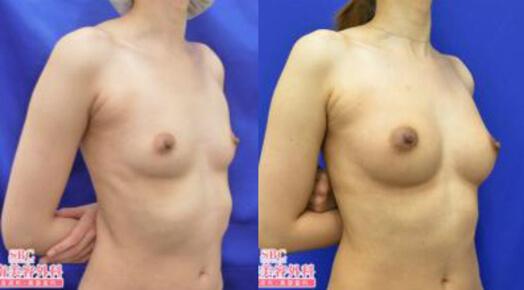 ライポマティック併用コンデンスリッチ豊胸 術後5ヶ月