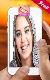 Braces Teeth Booth Selfie - náhled