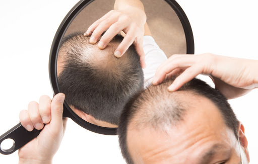 Japanese researchers learn how to grow hair follicles, and probably new hair