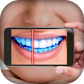Teeth Germ Scanner Simulator