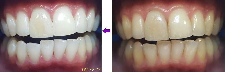 """הלבנת שיניים תוך שעה, ד""""ר גיא וולפין - אסתטיקה דנטלית ושיקום הפה, רופא שיניים מומלץ בפתח תקווה"""