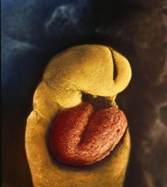 embrion_24 zile.jpg