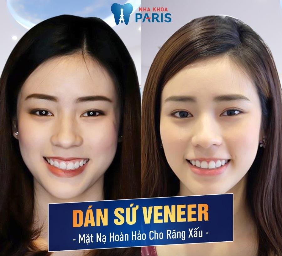 Veneer Ultrathin - Lựa chọn số 1 để có hàm răng sáng đẹp như ý - Ảnh 2