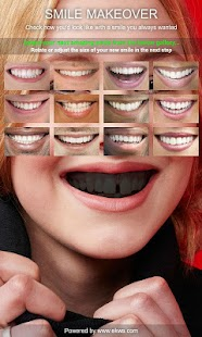 Smile Makeover- screenshot thumbnail