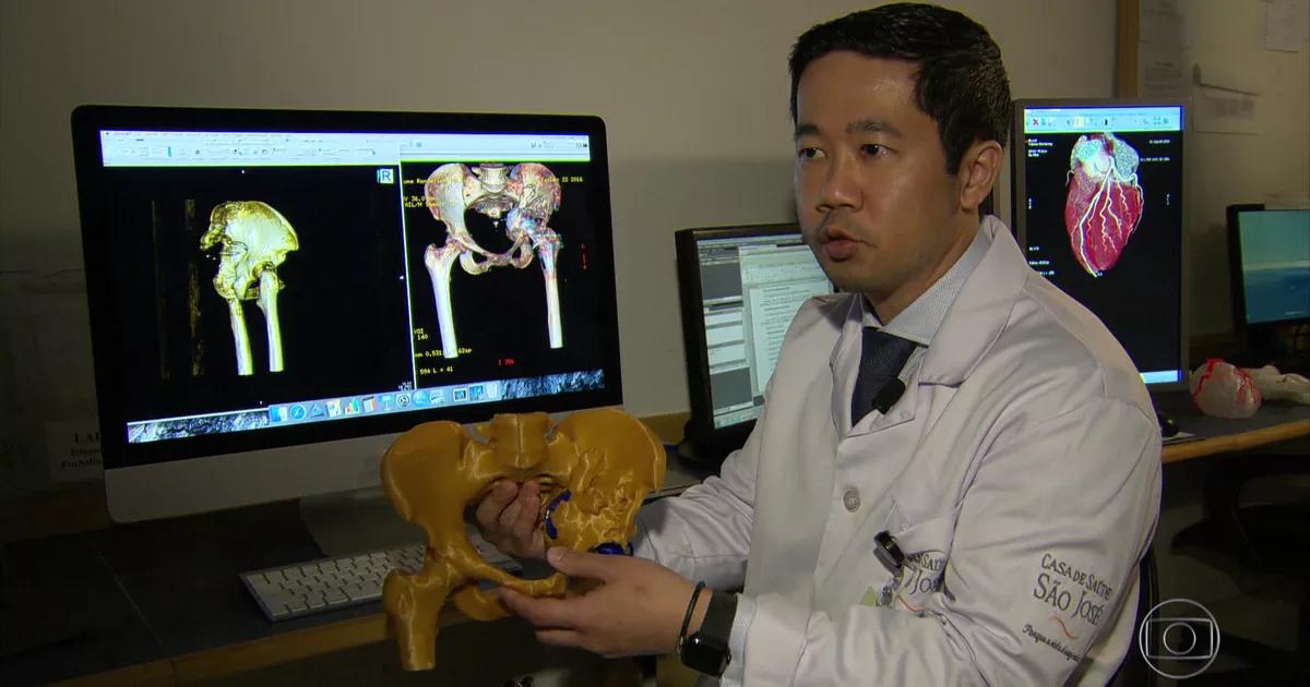 pré-operatório com impressão 3D