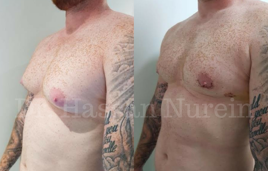 Gynecomastia Surgery Before & After