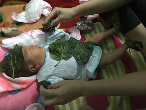 Có nên hơ lá trầu cho trẻ sơ sinh hay không