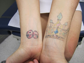 Photo: Pre 3rd Laser Tattoo Removal Treatment