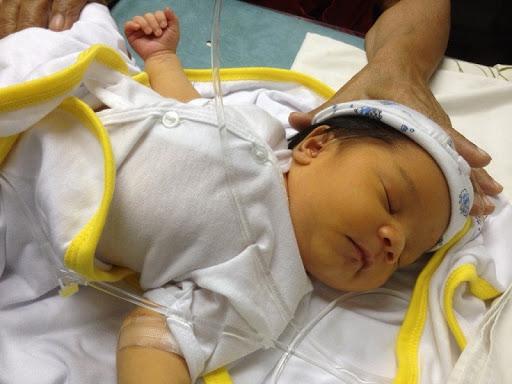 Tất tần tật những điều mẹ cần biết về bệnh vàng da ở trẻ sơ sinh