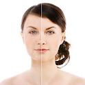 Pimple Remover icon