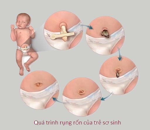 nhung-van-de-thuong-gap-voi-ron-cua-tre-me-nen-than-trong-chu-y-hinh1