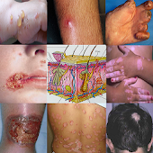 Dermatology AZ Skin Management Android APK Download Free By AA Clinic