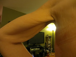 Photo: Arm (aka chicken wing according to CME)