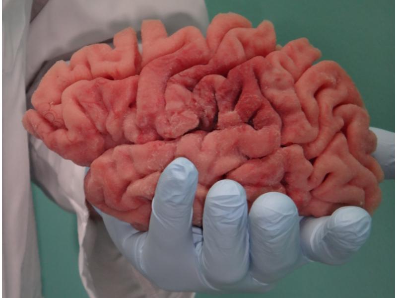 3D printed brain model.