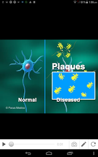 Alzheimer Disease - náhled