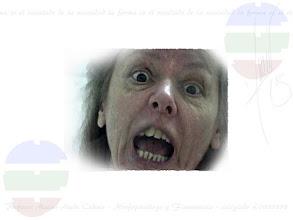"""Photo: LOS DIENTES Y SU SIGNIFICADO  Los dientes son la continuidad del marco (osamenta craneal), y por tanto, una malformación de ellos también significará una probable malformación del marco, hablándonos muchas veces de desequilibrios o trastornos cerebrales. Por ejemplo, las personas con tendencia a la violencia, suelen apretar mucho sus dientes (tensión interna), logrando se rompan o se deformen. A continuación cito algunos datos de interés.  Dientes pequeños: Tendencia del retraído. Suelen ser los dientes de personas de cara alargada o estrecha. Introversión y débil reserva de energía. Selectividad.  Dientes encimados: Tendencia de la retracción o del Abollado. Montados uno encima de otro, por falta de espacio bucal en anchura. Pertenecen a la retracción, perteneciendo generalmente a personas de mandíbula estrecha, y por tanto con problemática para llevar a cabo sus proyectos. Recordemos que la realización se encuentra en la anchura y la teoría en la altura. También son tendentes del """"Retraído-Abollado"""", y al estar encontrarse en la zona baja (reptil), actuarán con """"obstinación"""" en los planteamientos o realidades concretas; comiendo siempre lo mismo, no variando los procedimientos, haciendo las cosas siempre a su modo, etc.  Dientes grandes o separados: Tendencia del Dilatado. Son indicadores de expansión y en caso de duda sobre la zona inferior o instintiva, ayudarán a descifrar si realmente existe dilatación. Extroversión y resistencia sobre todo al medio. Adaptabilidad.  Dientes hacia el interior: Tendencia del Retraído-Abollado. Aunque en el niño es difícil ver el Modelado """"bossue"""" o con bollo, unos dientes con la punta hacia el interior, suelen indicar este tipo de Marco y de su posterior desarrollo. Por tanto de un posible futuro """"fanatismo"""" o extremista.  Dientes sifilíticos o deformados: Por continuidad del Marco, indica tendencia al desequilibrio negativo, ya que la deformación moderada o severa, siempre es un indicador malicioso debido al desequilibri"""