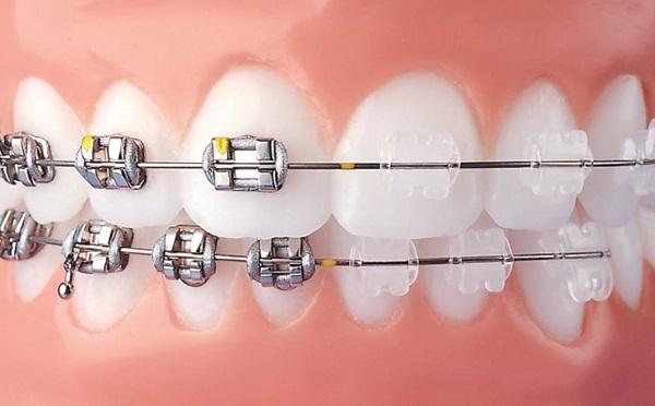 Tổng hợp các ưu điểm của niềng răng mắc cài tự buộc - Nha khoa Bally